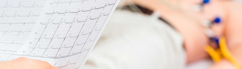 Nyugalmi EKG