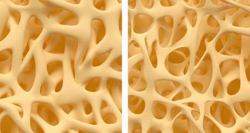 Csontsűrűség vizsgálat